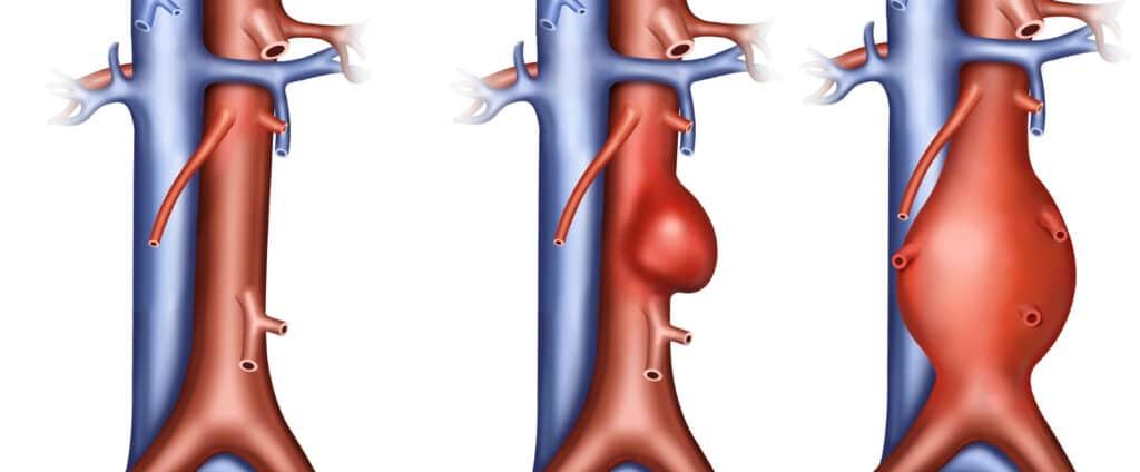aneurysma