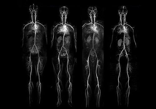 angiografie-hele-lichaam