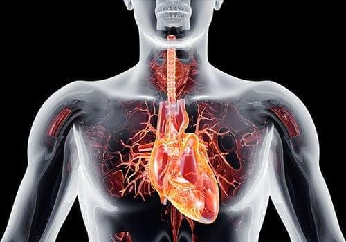 ct-angiografie