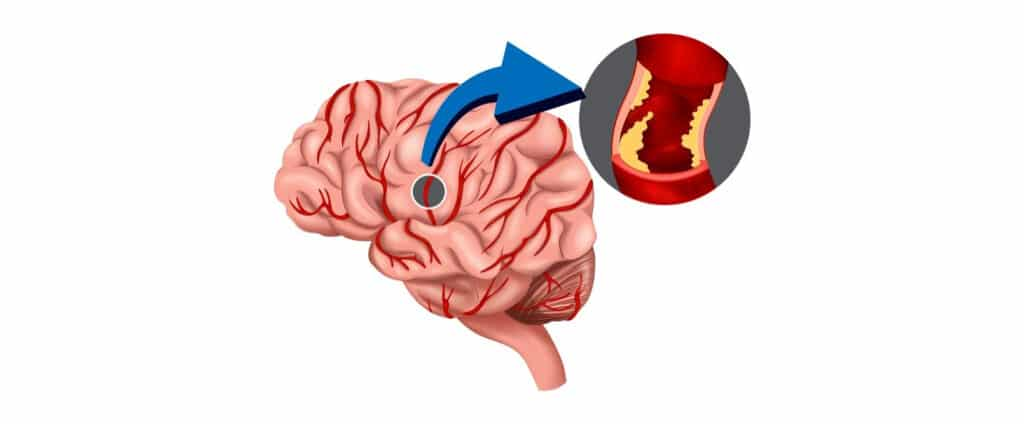 herseninfarct
