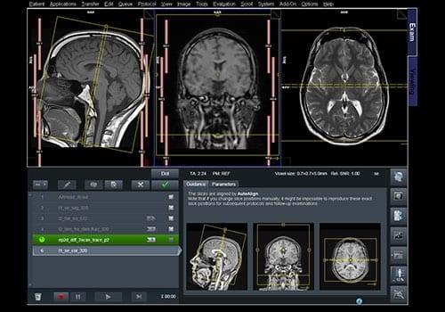 Beelden van MRI scan hoofd en hersenen