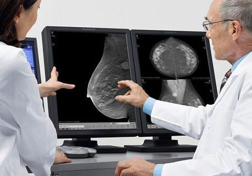 mri-mammografie