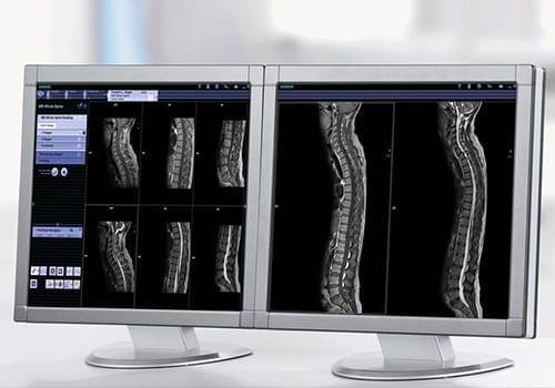 Beelden van MRI scan rug