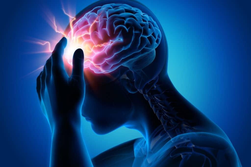 Hersenbloeding